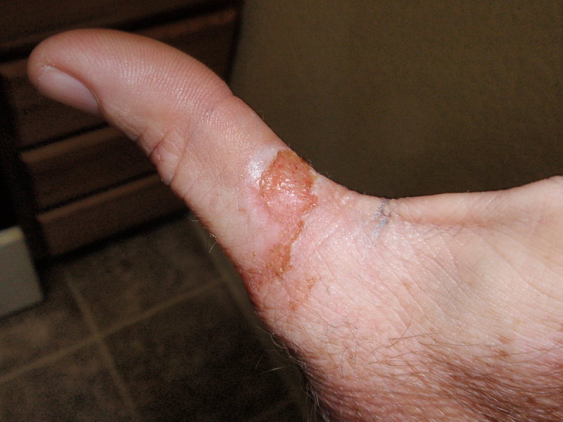 Rock Climbing Photo: Factor 2 rope burn.