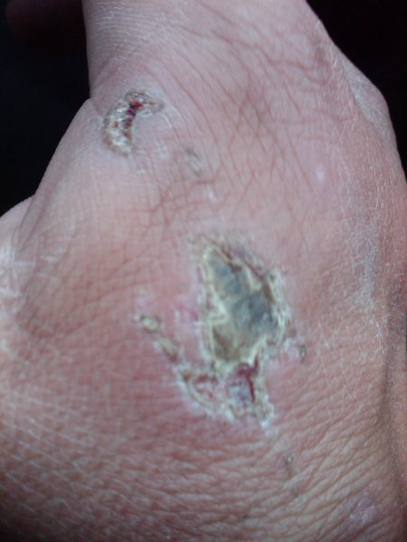 fell out of the fist jam at the bomb bay an got this! the cresnt shaped cut up hi on my hand was the worst gobe i ever got in the creek....
