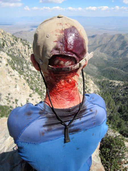 Rock Climbing Photo: The results of getting brained by rockfall while s...