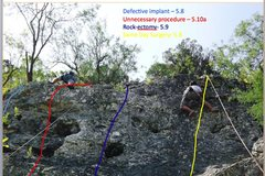 Rock Climbing Photo:  Beta on Malpractice wall at Medwall San Antonio