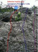 Rock Climbing Photo: Left Malpractice wall beta at Medwall San Antonio