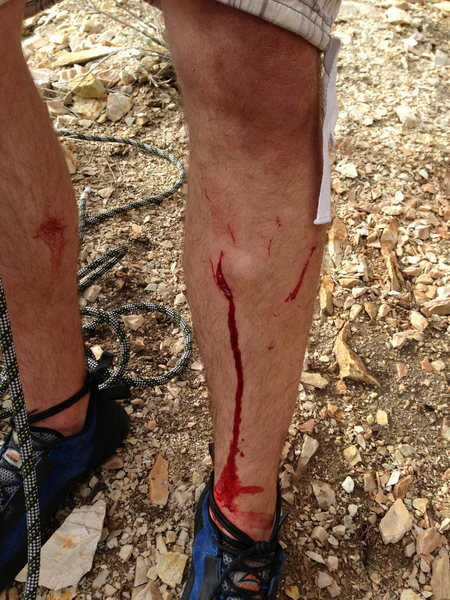 Quartzite can be unforgiving; a foothold broke off and gouged me pretty good.