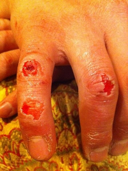 Rock Climbing Photo: Lost one down to the bone and tendon.