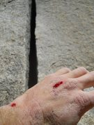 Rock Climbing Photo: Ouch! I had some scabs on my hand from a few days ...