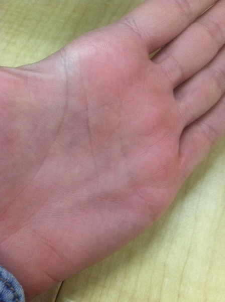 Help!!!!! Lump in palm, possible pulley injury? or Dupuytren's?