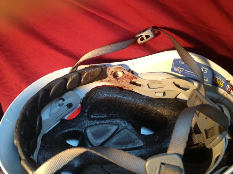 Seneca Helmet Aftermath