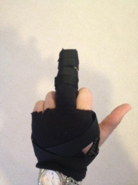 Rock Climbing Photo: My post-surgical splint.