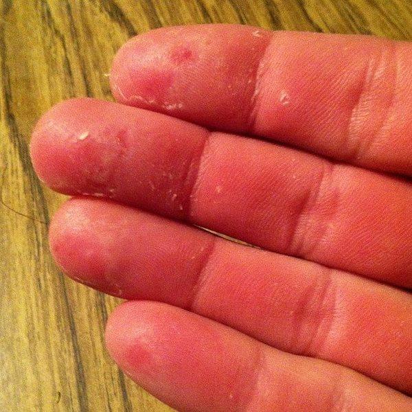 Rock Climbing Photo: Trashed Fingers