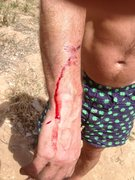 stitches after rock fall, ZION 2013