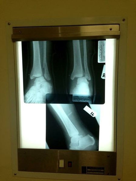 Broken Fibula and a widening of the Tibia