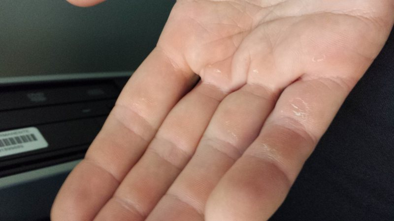 Here is a real climbers hand