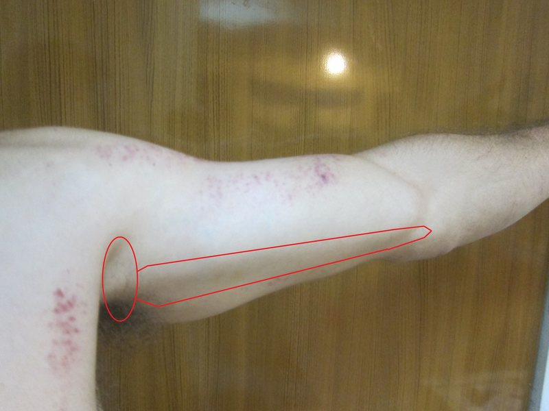 Pain in armpit moving down arm