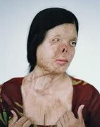 Rock Climbing Photo: Female Acid Attack victim