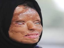 Female  Acid attack 2
