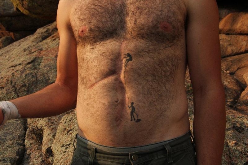 Climbing tattoo/scar.