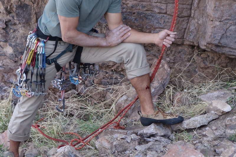 "Rock Climbing Photo: The results of the ""claw"" -- Harry Potte..."