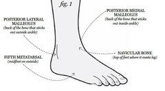 Rock Climbing Photo: Anatomy of an Ankle Injury