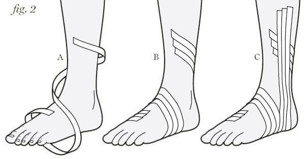 Tape Splint an Injured Ankle