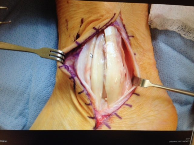 left outside ankle, toes to the left ... flattened peroneous longus and brevis, overe the yop of the ankle bone instead of behind it ... should be behind the retinaculum, not in front of it