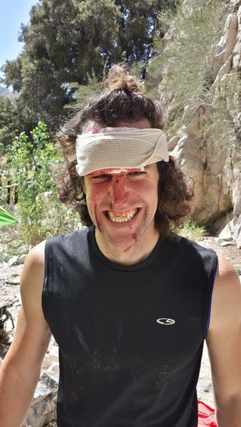 Still a bit chossy. Friend got hit by rock yesterday. (9/21/2014) (he was wearing a helmet, and it cracked his helmet too, close call)