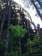 Rock Climbing Photo: Psoriasis