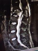 MRI after fall
