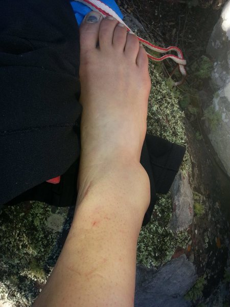 Fractured Talus injury 20 minutes after falling 10-12 feet onto lots of rocks
