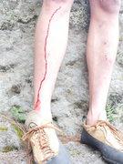 Rock Climbing Photo: blood offerings