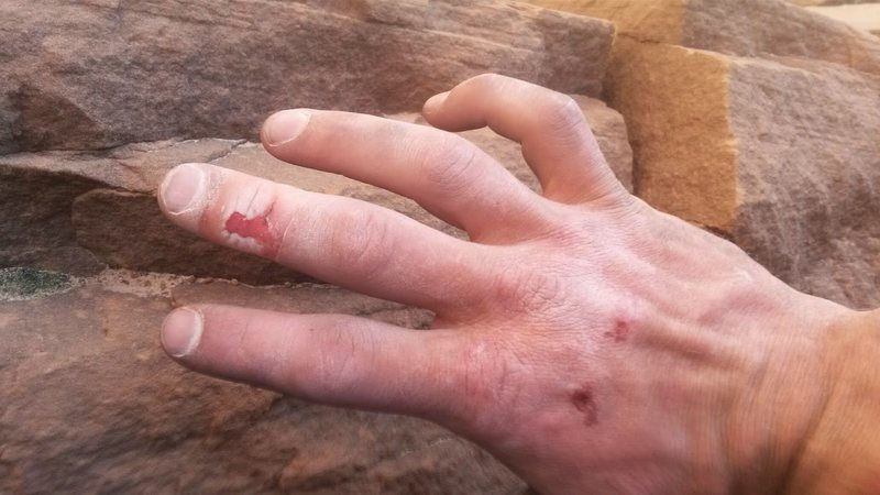 Rock Climbing Photo: RIP my finger skin after giving this 6 (insanely f...