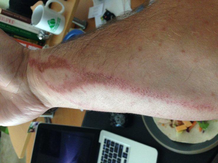 Proof the rash does exist.  Photo credit:  cserenari