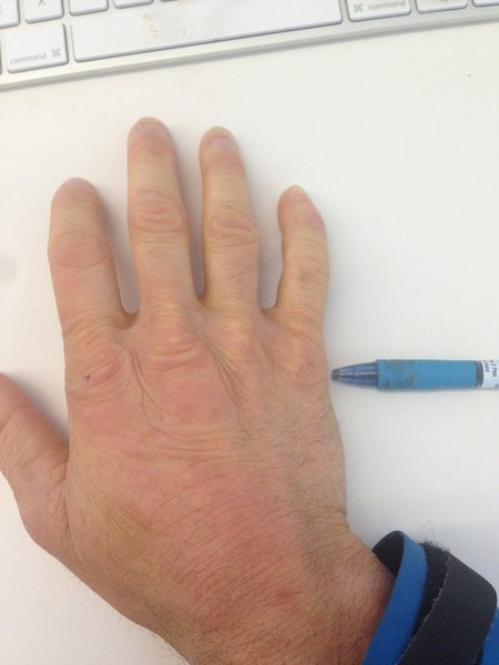 Rock Climbing Photo: Hand injury.