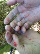 Rock Climbing Photo: My hands after one of my many failed attempts... T...