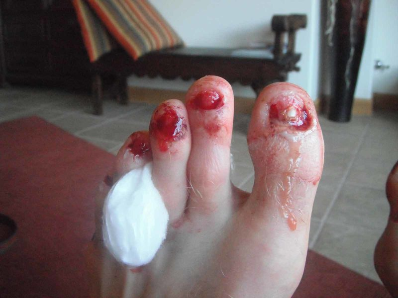 Toe nail infection and nail removal (onychomycosis)