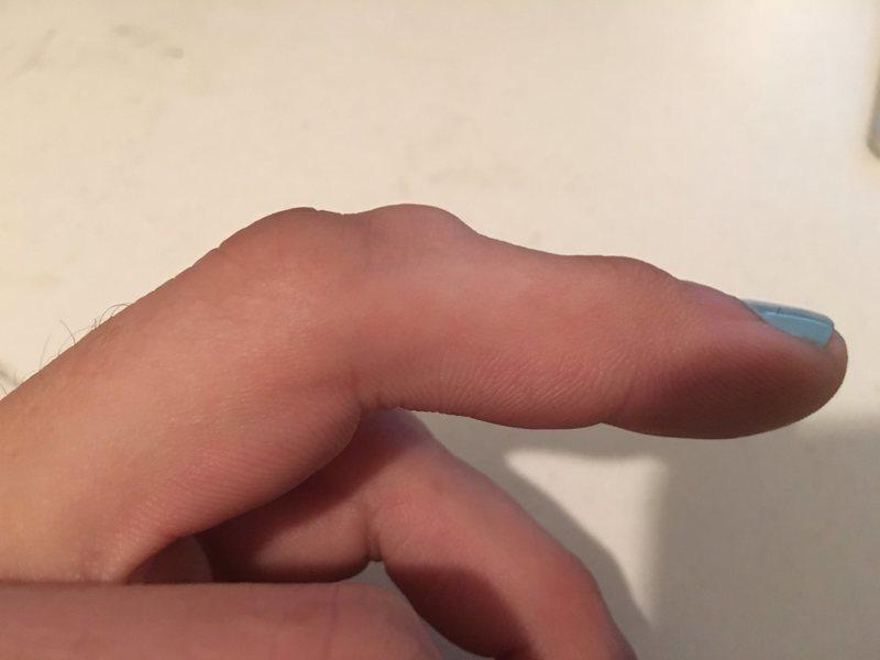 Rock Climbing Photo: My new knuckle