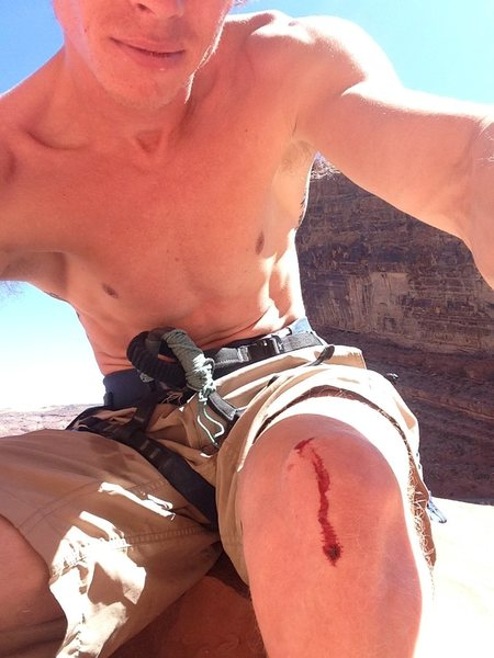 Rock Climbing Photo: Well....