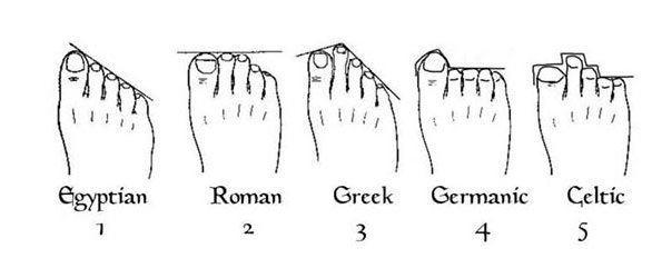 toe arrangement