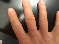 Index finger is quite swollen (reduced in this 3.5 months rest)