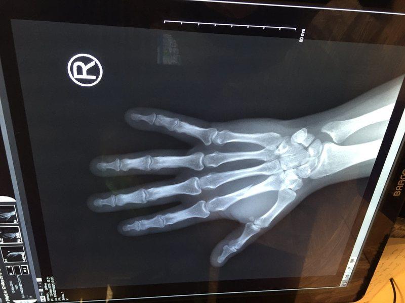 Rock Climbing Photo: broken hand