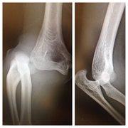 Rock Climbing Photo: Dislocated elbow