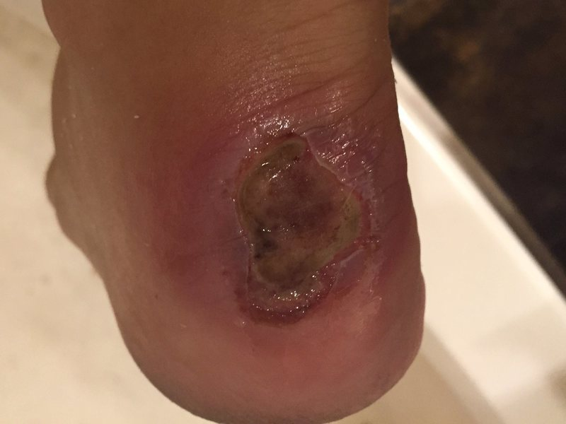 My heel after climbing in August in Vegas