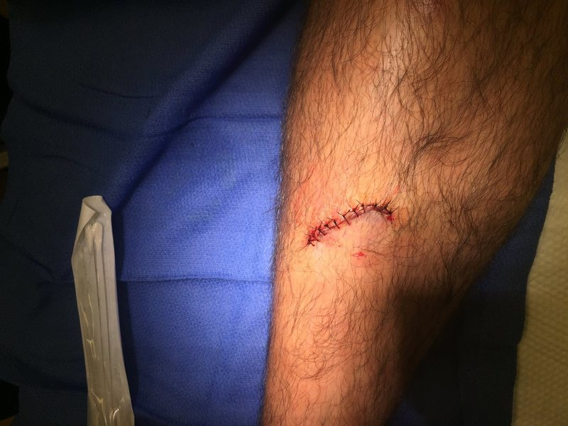 Rock Climbing Photo: 14 stitches later and the leg is good.
