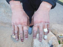Rock Climbing Photo: My hands after onsighting every pitch on Positive ...