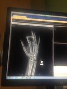 Rock Climbing Photo: x-ray