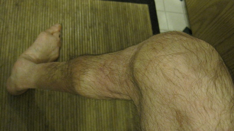 Rock Climbing Photo: Polio affected leg that I sprained the knee of.