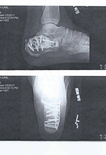hardware placed in heel