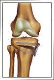 Rock Climbing Photo: Osteotomy Knee treatment