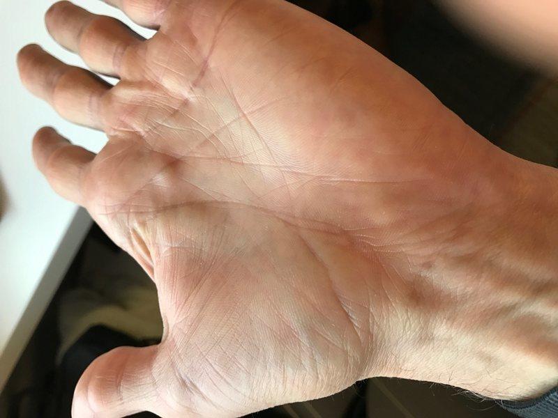 bump on my hand