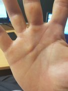 My hand showing beginning of Dupuytrens