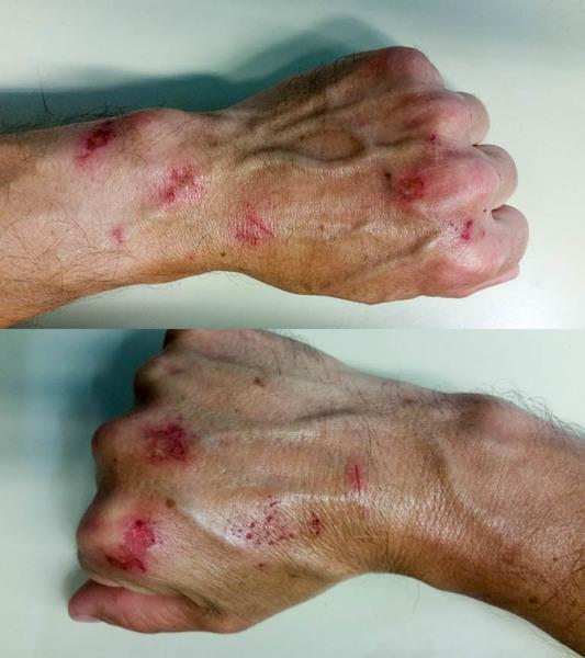 I recommend crack gloves :/