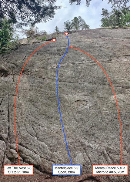 Left side topo